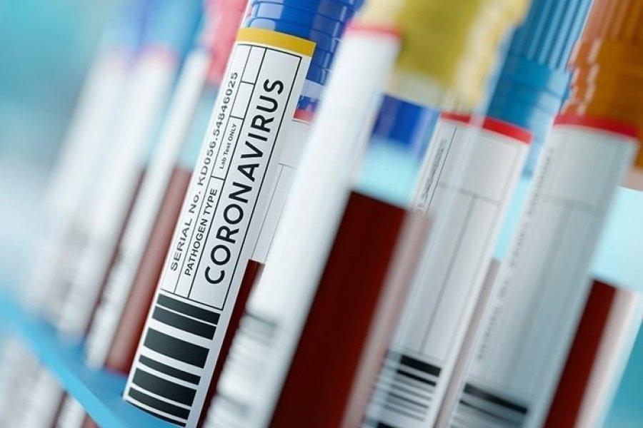 Covid-19| Se acumulan 119 casos positivos, de los cuales se han recuperado 114 en Corrientes
