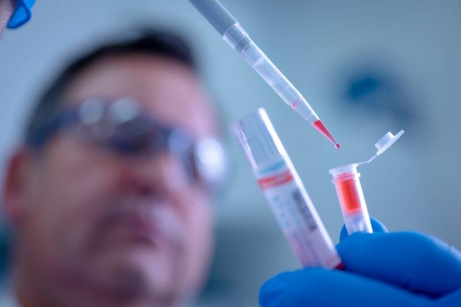 Récord de muertes por Coronavirus en Argentina