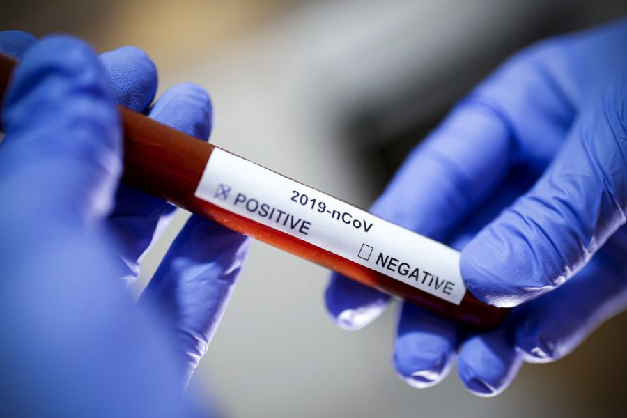 Corrientes registra 21 nuevos casos de coronavirus en Capital