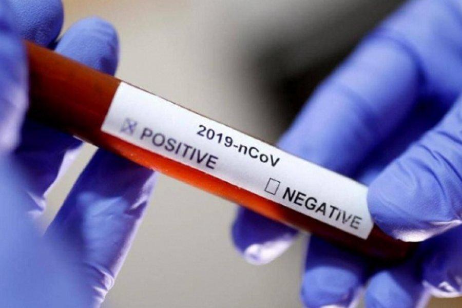 Coronavirus: Con tres decesos más, Chaco posee 185 muertes