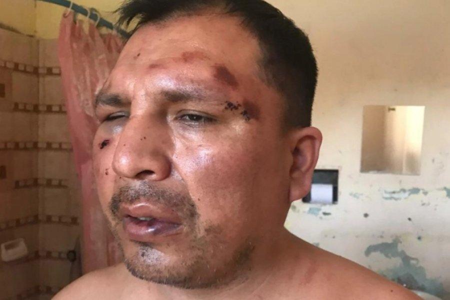 La Policía golpeó a un hombre y lo detuvo por 18 horas