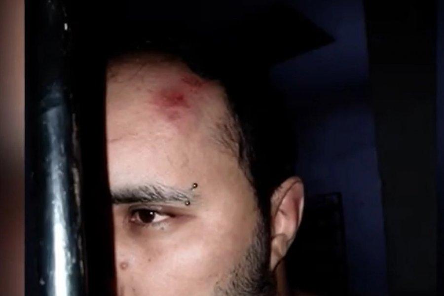 Fue a denunciar una fiesta clandestina y terminó golpeado por la policía
