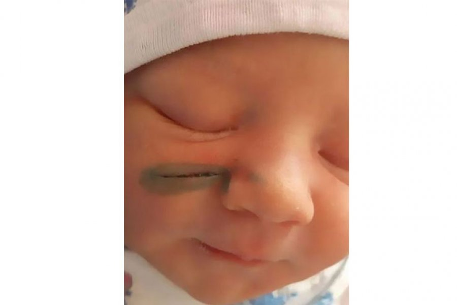 Bebé quedó con una cicatriz en la cara luego de que los cirujanos la cortaran en la cesárea