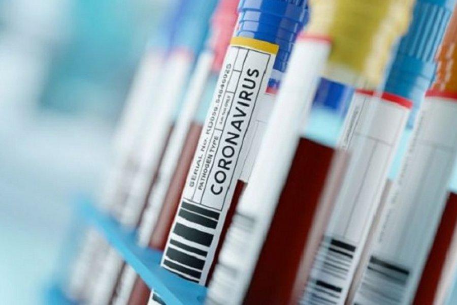 Corrientes sumó 76 casos nuevos: Capital y Mercedes con más contagios de Coronavirus