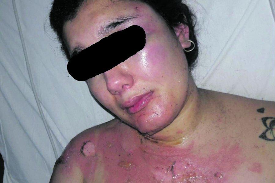Recibió el alta la joven quemada pero el agresor sigue prófugo