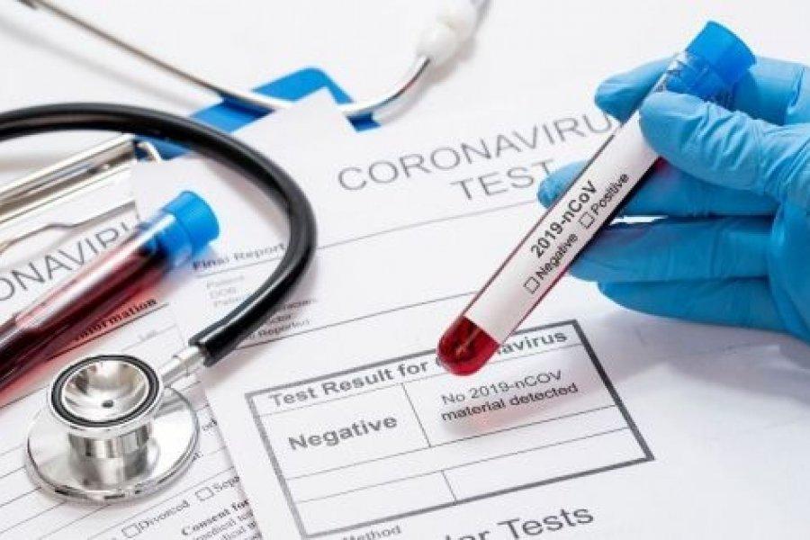Avanza la pandemia: Corrientes sumó 120 contagios de Covid-19