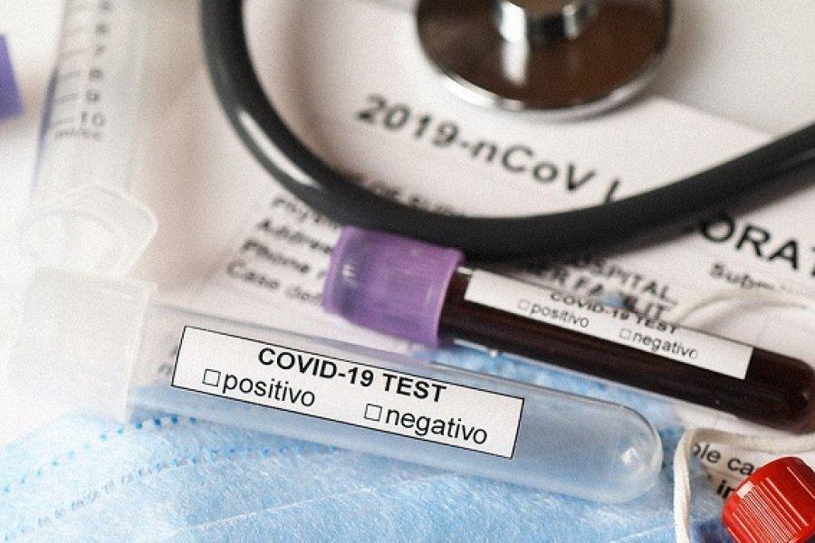 Nuevo récord de contagios: Confirmaron 160 casos de Coronavirus en Corrientes