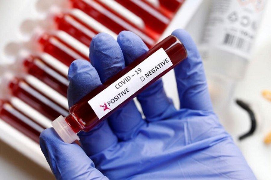 Récord: Corrientes registró 442 casos nuevos de Coronavirus