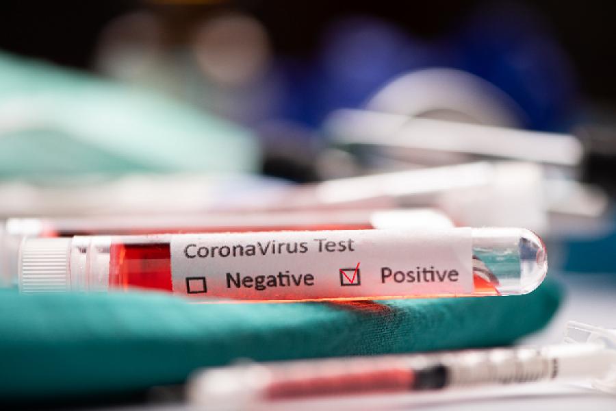 Corrientes: 378 casos nuevos de Coronavirus en un día