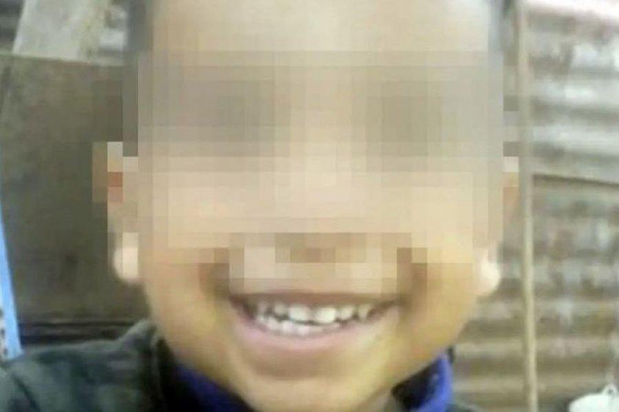 Un pitbull desfiguró a un nene de tres años en Córdoba