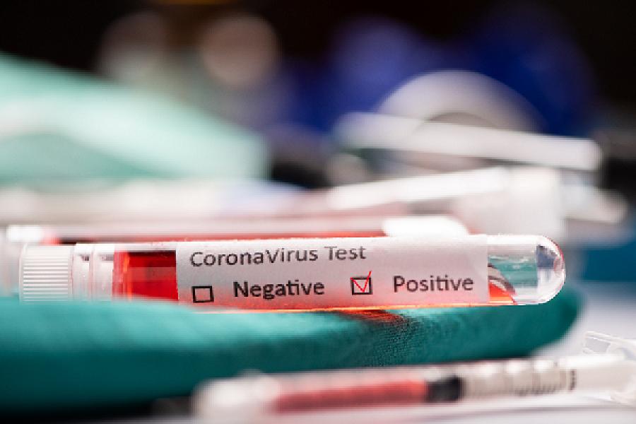 Corrientes: Se registraron 180 nuevos casos de Coronavirus