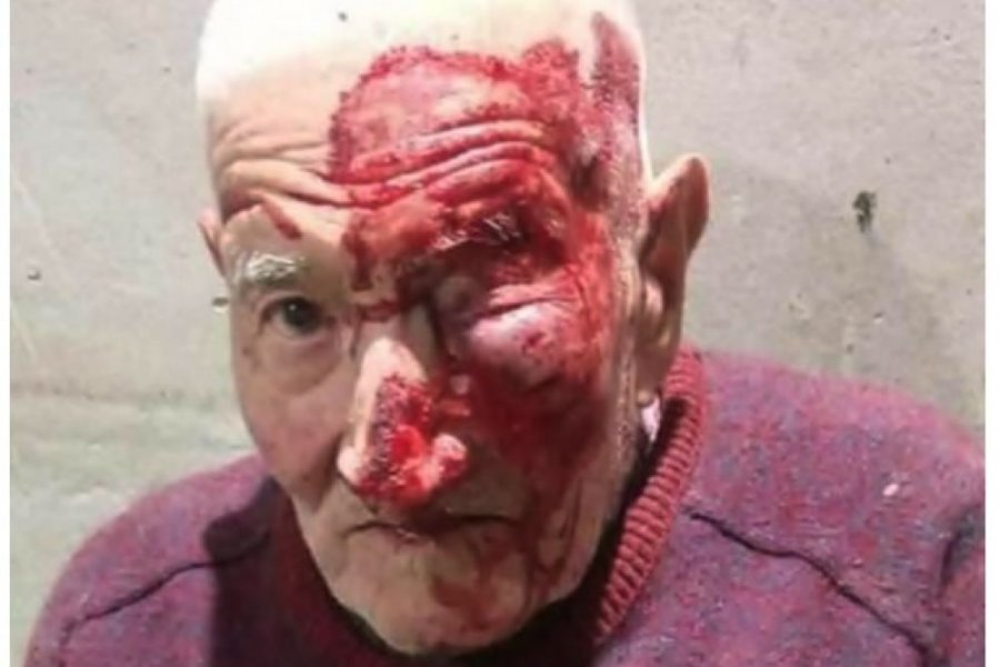 Dejaron inconciente a un anciano tras un violento asalto