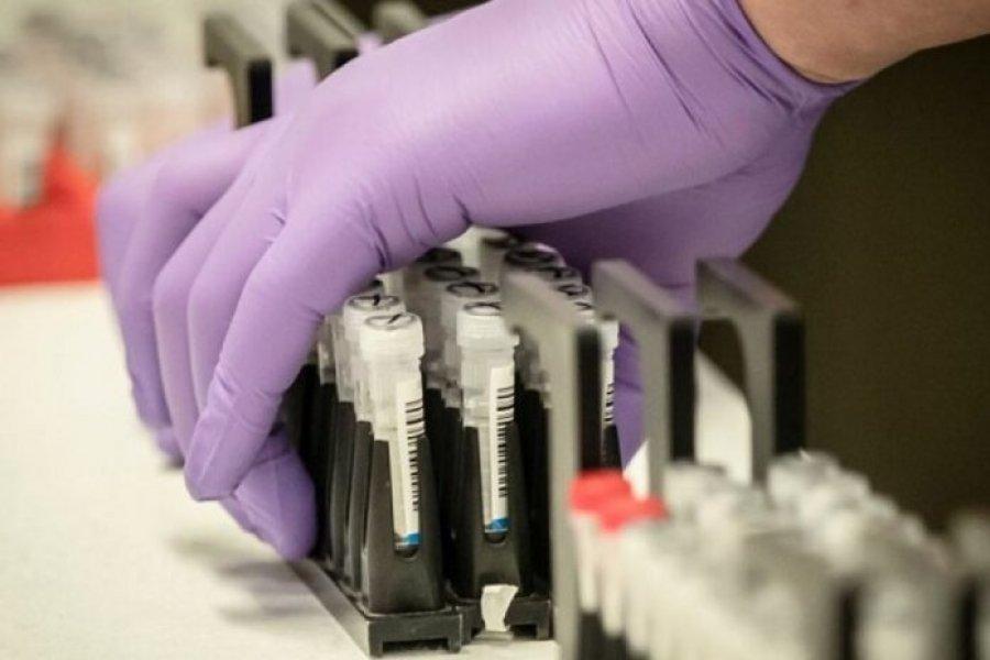 Corrientes sigue con altas cifras: Detectaron 667 contagios de Coronavirus en un día