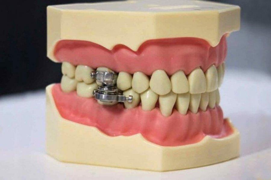 Un candado en los dientes: el nuevo dispositivo para adelgazar que desató la polémica
