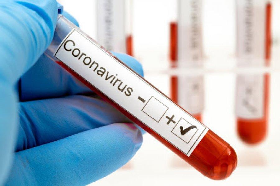 Detectaron 449 casos nuevos de Coronavirus en Corrientes