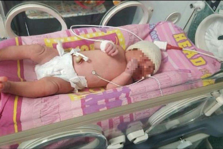 Rescataron a una beba recién nacida de una bolsa de basura cuando iba a ser compactada