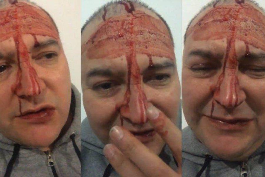 Brutal ataque homofóbico a Leo García en General Rodríguez